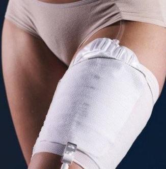 Carefix Carebag Urinary Leg Bag Holder